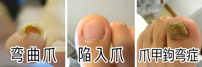 巻き爪の種類