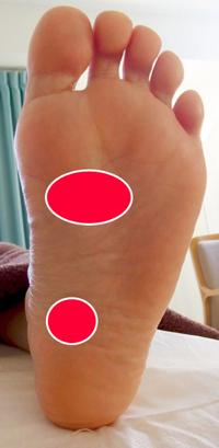 足底筋膜炎の好発部位