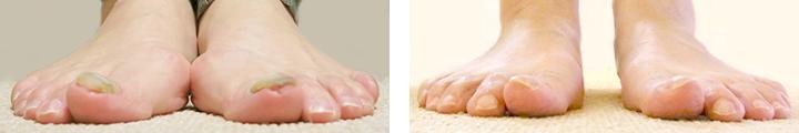 伸びない爪の特徴
