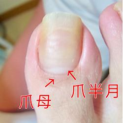 伸びない爪の原因