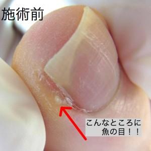 爪溝の魚の目施術前