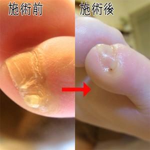 足の小指の爪割れる