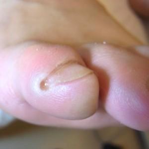 足小指爪処置後