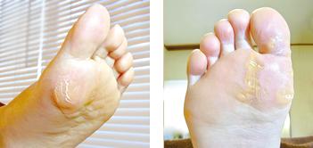 母指球と母指のタコ