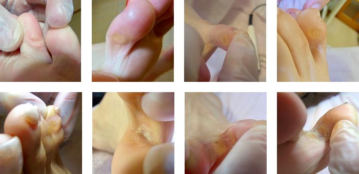 指の間にできる魚の目の種類と特徴