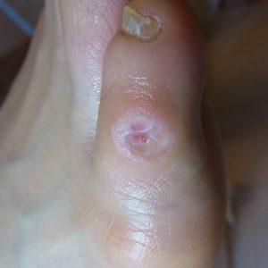 小指魚の目施術後