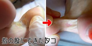 指の股にできたタコ