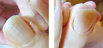 爪溝(側爪郭)の魚の目