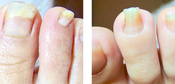 人指し指の巻き爪