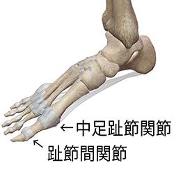 斜めに生える爪の原因